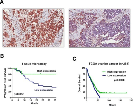 Association between expression ofABCA1and survival in ovarian cancer patients. Expression of ABCA1 in 55 ovarian cancer patient samples was determined by IHC in tissue microarray. (A) Representative image of ovarian cancer showing high (left panel) and low (right panel) ABCA1 expression on the cell membrane or cytoplasm (×400). (B) Kaplan-Meier analysis found that patients with low ABCA1 expression have shorter progression-free survival than patients with high ABCA1 expression (P = 0.038). (C) Similar results can be observed in TCGA ovarian cancer RNA-Seq dataset that patients with low expression of ABCA1 are associated with shorter overall survival (P = 0.0008). Log-rank P values are shown.