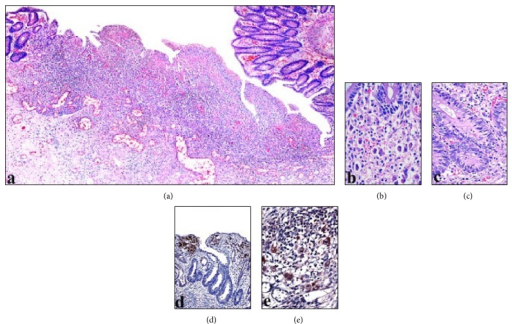 This image shows mucosal ulcer area (a) with the cells containing viral inclusions (b), apoptosis within crypts and PMNL infiltration (c), and immunohistochemical positivity of CMV (d and e) (magnifications (a) ×50; (b, c, and e) ×400; (d) ×200).