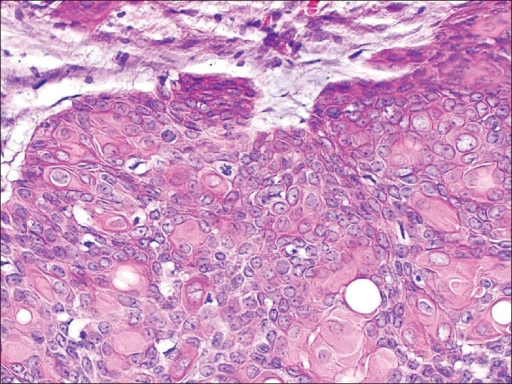 Cells of the proliferation with abundant pink cytoplasm and nuclear atypia and numerous mitotic figures. H and E, ×200