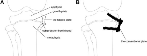 Sketch map of hemiepiphysiodesis. (A) The hinged plate almost completely matches the contour of the bone. (B) The straight conventional plate does not match the bone surface.