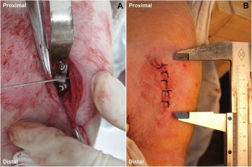 Intraoperative photos. (A) A hinged plate and screw system is implanted. (B) No obvious prominence observed after wound closure.