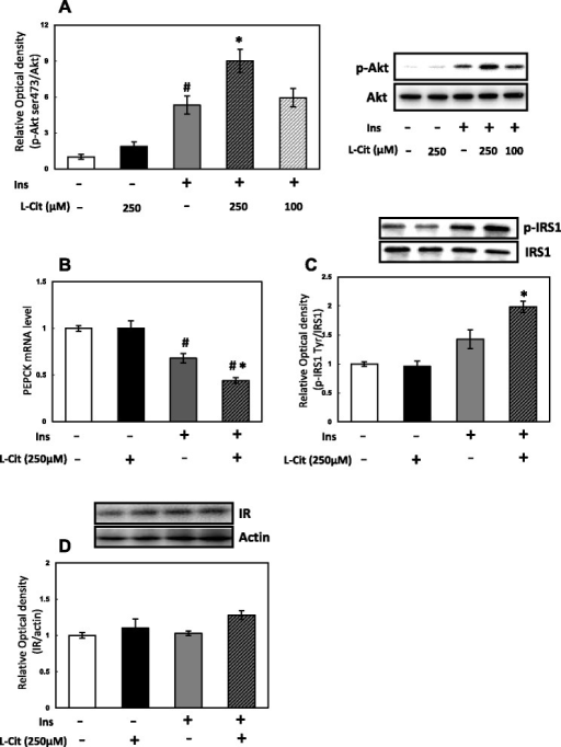 Effects of L-Cit on insulin signaling in H4IIE cells. H4IIE cells were treated with L-Cit for 1 h and stimulated for 10mins with 0.1nM insulin. a Phosphorylation level of Akt at serine 473, (b) PEPCK mRNA level, (c) phosphorylation level of IRS1 at tyrosine, (d) protein level of IR. Data were expressed as the mean ± SEM of three independent experiments. Significant differences were identified by Tukey's test, #p < 0.05 vs control, *p < 0.05 vs with insulin
