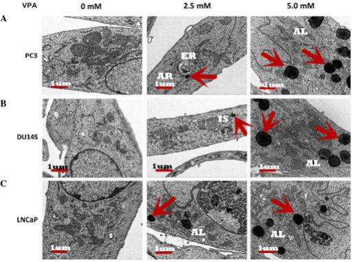 Ultrastructure of autophagy observed by electron microscopy in prostate cancer cells following treatment with valproic acid (0, 2.5 and 5.0 mM). Different sizes and stages of autophagic vacuoles were visible at a ×1,000 magnification. Numerous autophagic lysosomes (arrowheads) were observed in the (A) PC3, (B) DU145 and (C) LNCaP cells. The majority of autophagic lysosomes were identified in the late autophagic stages.
