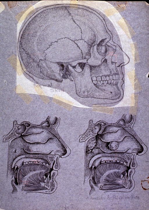 <p>Right profile of skull and cross section of jaw and nasal cavity showing development of adenoids and nasal polyps.</p>