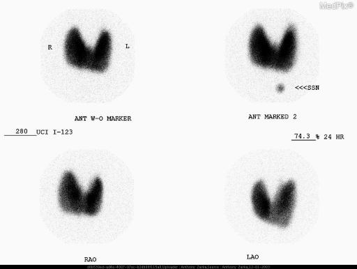 Thyroid scintigraphy of a patient with Graves'. The gland is uniformly enlarged with homogeneous uptake and distribution. The radioiodine uptake is increased at 74.3%.