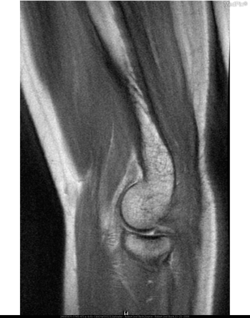 Sagittal T1-weighted MR image of the elbow shows a prominent triangular low to intermediate signal structure consistent with a mildly thickened synovial fold, interposted between the posterior articular surfaces of the radial head and capitellum .