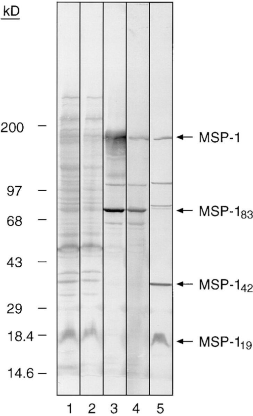 Specificity of affinity-purified human anti-pME6  antibodies shown by Western  blot analysis. An SDS extract of  FCB-1 merozoites was subjected to SDS-PAGE under  nonreducing conditions on a  12.5% gel, transferred to nitrocellulose, then probed with a  sample of pooled human immune serum taken before chromatography over the pME6 affinity column (lane 1); serum  taken after passage over the column (lane 2); affinity-purified  anti-pME6 antibodies (lane 3);  mAb 89.1 (specific for MSP-183;  lane 4); and mAb 111.4 (specific  for MSP-142 and MSP-119; lane  5). Positions of molecular mass  marker proteins are indicated, and  bands corresponding to the MSP-1  precursor, MSP-183, MSP-142,  and MSP-119 are arrowed.