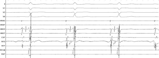 Mahaim fiber potential as marked with arrows in the RF Distal (RFD) channel shows a sharp potential similar to a His recording. (HBED)