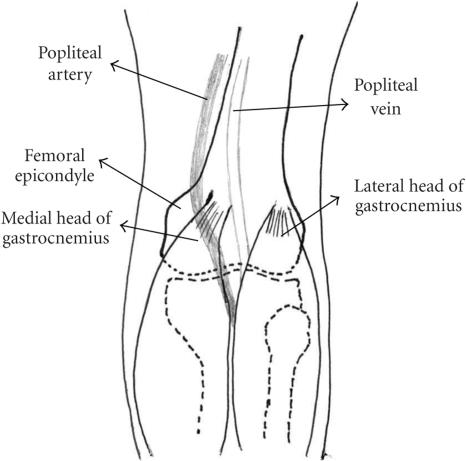 gastrocnemius artery - photo #21