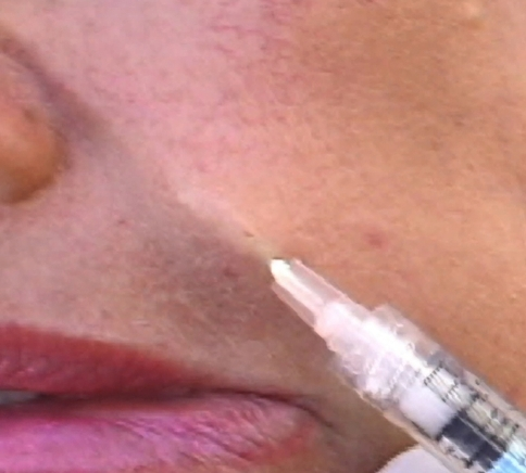 The needle is placed correctly, one needle diameter deep in the dermal–subdermal junction