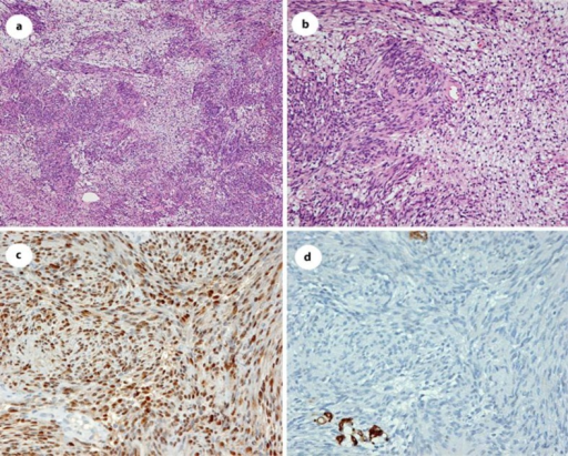 Microscopic features of the schwannomas. The upper panel shows spindle cells in a fascicular pattern, and other regions in both tumors were composed of hypocellular spindle cells in a loose myxoid matrix (a, b; HE stain). The lower left panel shows that spindle cells reacted to S-100 (c). The lower right panel shows that spindle cells did not react to anti-smooth-muscle actin (d).