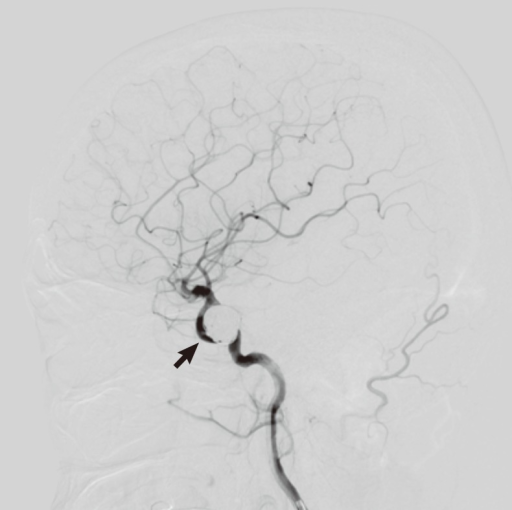 The angiography image after coil embolization of the an | Open-i