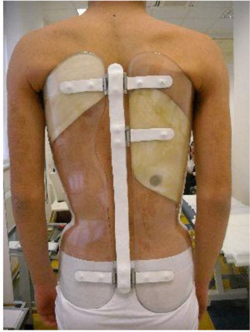 Placement of the Thermobrace in a Sforzesco brace. Example of placement of the Thermobrace in a Sforzesco brace worn by a patient included in the study.