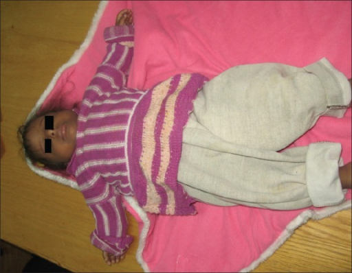 Girl with Kenny-Caffey syndrome age 32 months showing severe growth retardation