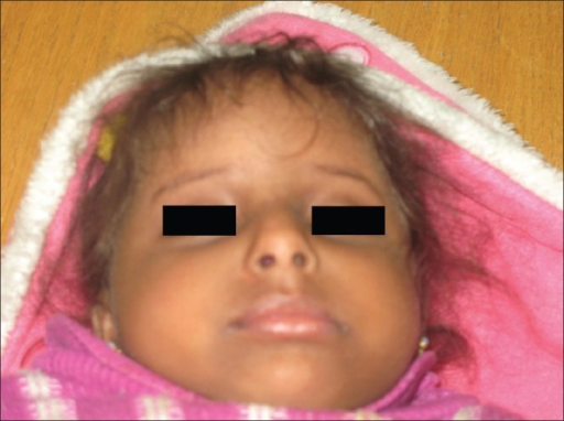 Girl with Kenny-Caffey syndrome showing, depressed nasal bridge, micrognathia, upslanting, deep-set eyes and low set ears