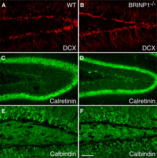Neuronal differentiation marker expression in dentate gyrus. (A,B) Doublecortin, (C,D) Calretinin, (E,F) Calbindin expression in 7-week-old mouse dentate gyrus. (A,C,E) Wild-type mice, (B,D,F) BRINP1-KO mice. Scale bar; 50 μm.