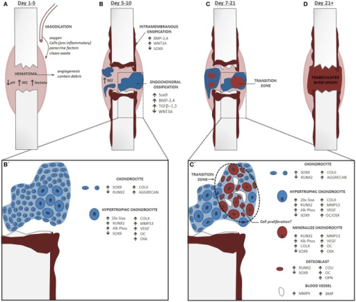 Endochondral Fracture Schematic A Fracture That Is Not Open I