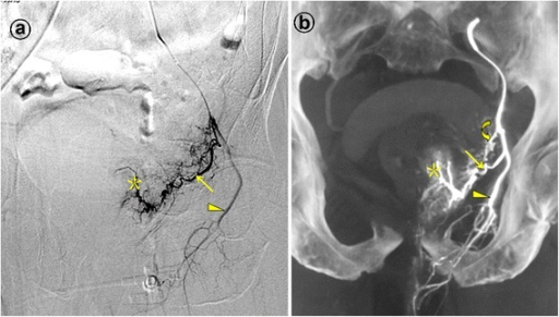 Prostatic artery arise from the internal pudendal artery. Images from a patient with severe lower urinary tract symptoms due to benign prostatic hyperplasia (117 mL) underwent PAE. a. Digital subtraction angiography (DSA) of the anterior division of the left internal iliac artery with ipsilateral oblique view demonstrates the left prostatic artery (straight arrow) and the left internal pudendal artery (arrowhead). The asterisk indicates the contrast staining in the left prostate lobe. b. Cone-beam CT image with coronal view after selective catheterization of the anterior division of the left internal iliac artery demonstrates the left prostatic artery (straight arrow) and the left internal pudendal artery (arrowhead). The curved arrow indicates the inferior vesical artery, which is difficult to identifying on the DSA. The asterisk indicates the contrast staining in the left prostate lobe.