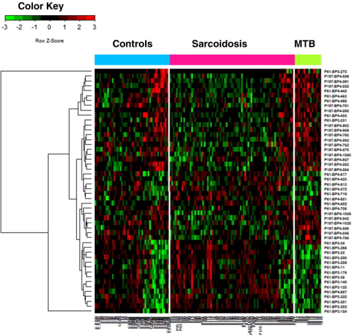 Heatmap generated from the microarray analysis using 3 datasets derived from 115 sarcoidosis patients, 64 control subjects and 17 TB patients. Fifty antigens showed significant differential expression among the three groups.