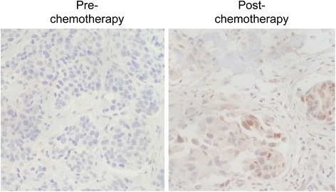 Nuclear basic fibroblast growth factor (bFGF) expression is increased in a subset of triple-negative (TN) breast cancers post neoadjuvant chemotherapy treatment. bFGF immunohistochemistry was performed on matched tumor tissues obtained from a patient with TN breast cancer before (pre-chemotherapy) and after (post-chemotherapy) neoadjuvant chemotherapy (docetaxel/cyclophosphamide) treatment. Magnification ×200