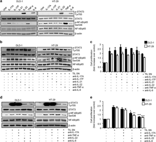 IL-17A, IL-22, TNF-α and IL-6 contribute to TIL-derived supernatant (TIL SN)-mediated STAT3/NF-kB activation and mitogenic effect in CRC cells. (a) Representative western blotting showing p-STAT3 Tyr705, STAT3, p-NF-kB/p65 Ser536 and NF-kB/p65 expression in DLD-1 and HT-29 cells stimulated or not with IL-17A, IL-17F, IL-21, IL-22, TNF-α- and IL-6 (all used at 25 ng/ml) for 15 min. β-Actin was used as a loading control. One of three representative experiments in which similar results were obtained is shown. (b) Representative western blotting showing p-STAT3 Tyr705, STAT3, p-p65 Ser536 and NF-kB/p65 expression in DLD-1 and HT-29 cells stimulated or not with TIL SNs in the presence or absence of anti-IL-17A, anti-IL-17F, anti-IL-21, anti-IL-22, anti-TNF-α and anti-IL-6 (all used at 10 μg/ml) as indicated. β-Actin was used as a loading control. One of three representative experiments in which similar results were obtained is shown. (c) Representative histograms showing cell proliferation of DLD-1 and HT-29 cells stimulated as indicated in (b). Data indicate mean±s.e.m. of four experiments. Differences between groups were compared using one-way analysis of variance (ANOVA) followed by Bonferroni's post hoc test. (d) Representative western blotting showing p-STAT3 Tyr705, STAT3, p-NF-kB/p65 Ser536 and NF-kB/p65 expression in DLD-1 and HT-29 cells stimulated or not with TIL SNs in the presence or absence of anti-IL-17A, anti-IL-22, anti-TNF-α and anti-IL-6, used in combination as indicated. β-Actin was used as a loading control. One of three representative experiments in which similar results were obtained is shown. (e) Representative histograms showing cell proliferation of DLD-1 and HT-29 cells stimulated as indicated in (d). Data indicate mean±s.e.m. of five experiments. Differences between groups were compared using one-way analysis of variance (ANOVA) followed by Bonferroni's post hoc test. DLD-1: TIL SN+anti-IL-22+anti-IL-6- vs TIL SN-treated cells, *P<0.05, TIL SN+anti-IL-17A+anti-TNF-α+anti-IL-22+anti-IL-6- vs TIL SN-treated cells, ***P<0.001; HT-29: TIL SN+anti-IL-22+anti-IL-6- vs TIL SN-treated cells, **P<0.01, TIL SN+anti-IL-17A+anti-TNF-α+anti-IL-22+anti-IL-6- vs TIL SN-treated cells, ***P<0.001.