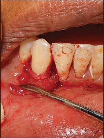 The periosteum transposed coronally over the denuded root surface and sutured