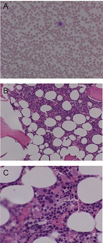 A) Peripheral smear showing slight anisocytosis, monocytosis with marked thrombocytopenia with some giant platelets; B, C) Bone marrow biopsy showing granulopoiesis, hypercellular marrow with increased myelomonocytic cells and megakaryocytogenesis at lower (B) and higher (C) magnification.