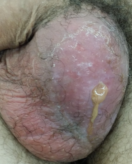 The 1 × 1 cm defect in the left scrotum with purulent discharge found on examination.