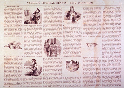 <p>Seven small illustrations accompanying the text of an article by Dr. Hitchcock on the manufacture of dentures.</p>