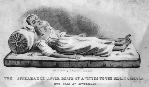 A sketch from the early 1830s of a victim of cholera in Sunderland (source: Wellcome Library, London).