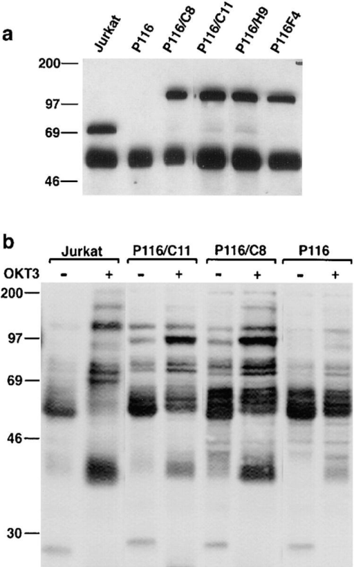 Quantitation and  functional reconstitution analyses  of ZAP-70 GFP in stably transfected P116 subclones. (a) Cell  lysates of Jurkat, P116, or P116/ ZAP-70 GFP subclones were  immunoprecipitated with anti– ZAP-70. Immunoprecipitated  proteins were analyzed by SDS-PAGE and Western blot using  anti–ZAP-70 (2 × 106 cells/ lane). Levels of ZAP-70 GFP expression in each subclone, presented as a percent of endogenous ZAP-70 in Jurkat cells,  were as follows: 97% for C8,  143% for C11, 131% for H9, and  94% for F4. (b) Cells were lysed  directly or first stimulated for 2  min with OKT3 F(ab′)2 at 37°C,  and antiphosphotyrosine Western blot analysis of whole cellular  lysates (2 × 105 cells/lane) performed.