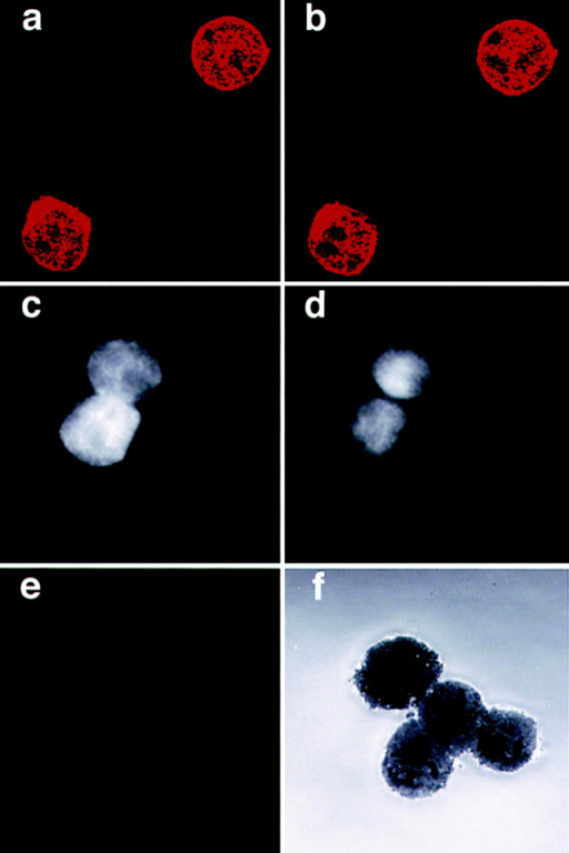 Identification of endogenous ZAP-70 in the nucleus of Jurkat cells by IF staining. Jurkat (a, b, c, and d) and P116 (e and f ) cells were  stained with affinity-purified anti–ZAP-70 antiserum. 0.5 μM slices  through the middle of the cells are displayed (a, b, e, and f ). Two 0.5 μM  slices, 1 μM apart, are shown for anti–ZAP-70–stained Jurkat cells (a and  b), and one for P116 cells (e). An image of the same field as in e, using the  reflector optics, indicates the specificity of the Ab stain (f ). The nuclear  staining of the anti–ZAP-70 is further verified by colocalization of anti– ZAP-70 (c) with the Hoechst DNA stain (d) in the same cells.