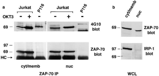 Biochemical isolation of ZAP-70 from nuclei of Jurkat cells,  and demonstration of its increased tyrosine phosphorylation after anti-TCR stimulation. (a) Cytosol/membrane (1.2 × 107 cells) and nuclear  fractions (2.6 × 107 cells) of Jurkat or P116 cells, immunoprecipitated  with anti–ZAP-70, were analyzed by antiphosphotyrosine Western blotting (top). The stripped membrane was reprobed with anti–ZAP-70 (bottom). Specific activity of ZAP-70 after cellular stimulation was 2.4 for cytosolic/membrane ZAP-70 and 1.4 for nuclear ZAP-70. A nonspecific  band appears in the 4G10 blot of P116 cells, which migrates more slowly  than the phosphorylated ZAP-70. (b) Whole lysate samples from the purified material (6 × 105 cells/lane) was immunoblotted with anti–ZAP-70,  and then reprobed with anti–IRP-1. Densitometric analysis confirmed  that there was a 5.3 fold enrichment of ZAP-70 in the nuclear fraction as  compared to IRP-1. This was confirmed in 3 independent experiments,  with enrichment of ZAP-70 as compared to IRP-n1 ranging from 5 fold  to 6.2 fold.