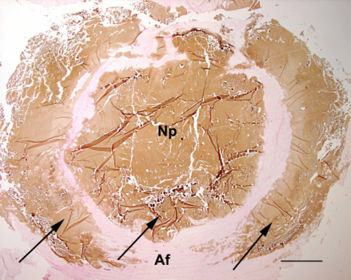 Histopathology of disc no. 7 (T1–2) from Dog no. 10. Calcium deposits (arrows) in the nucleus pulposus (Np) and in a broad discontinuous ring within the annulus fibrosus (Af): 'severe' degree of calcification (3). Von Kossa; Bar = 1.6 mm.