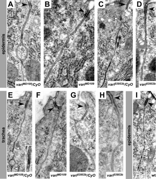 EM analysis reveals defective septate junctions in vari mutants. Epidermis (A-D, I) and tracheae (E-H) of stage 16 embryos. (A, E): variMD109/CyO-twi-GFP; (B, F): variMD109; (C, G): vari03953b/CyO-twi-GFP; (D, H): vari03953b; (I): wild-type. Adherens junctions (black arrowheads) and developing septate junctions (white arrows) can be distinguished in wild-type embryos. The inset in E shows the regularly aligned septa of pleated septate junctions between adjacent cells. Septate junctions are absent in homozygous variMD109 (B, F) and vari03953b (D, H) mutant embryos, while adherens junctions are well developed (black arrowheads).