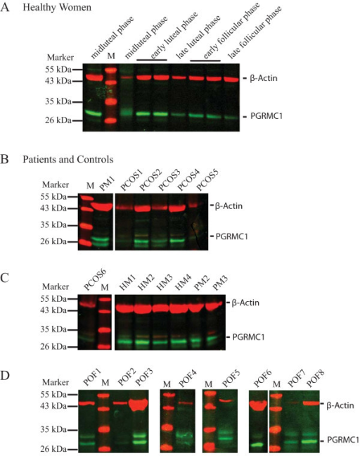 Detection of PGRMC1 and β-actin by Western blot analysis in total protein preparations obtained from peripheral nucleated blood cells (PNBC). Representative western blot pictures illustrating detection in (A) healthy cycling women (HF; distinct phases are indicated above), (B-D) PCOS and POF patients and control groups (PM, natural menopausal women; HM, healthy men). Total protein preparations were separated on a 12% SDS-PAGE, transferred to a PVDF membrane and subsequently detected using α-PGRMC1 and α-β-actin antibodies. A protein standard was included and the band sizes are indicated to the left. Bands corresponding to PGRMC1 (green) and β-actin (red) are indicated.