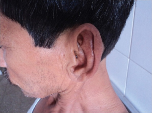 Petrified ears-stiff ears but with no visible changes