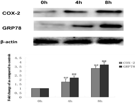 Effect of tunicamycin treatment on the expression of COX-2 and GRP78 in HepG2 cells.HepG2 cells were treated with 3 µmol/L tunicamycin (TM) for 0 (control), 4 and 8 hr. Equal protein amounts of cell lysates were subjected to western blot assay using specific anti-COX-2 and anti-GRP78 antibody. β-actin in the same HepG2 cells extract was used as an internal reference. Optical density reading values of the specific protein versus the loading control protein β-actin are represented as fold of the control values. (**P<0.01, ##P<0.01,compared with untreated HepG2 cells).