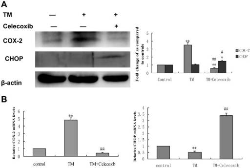 Effect of co-treatment with tunicamycin and celecoxib on the expression of COX-2 and CHOP in HepG2 cells.HepG2 cells were treated with 3 µmol/L tunicamycin in either the absence (control) or the presence of celecoxib (50 µmol/L) for 8 hr. (A)Equal amounts of cell lysates were subjected to western blot analysis using specific anti-COX-2 and anti-CHOP antibody. β-actin in the same HepG2 cells extract was used as an internal used as an internal reference. Optical density reading values of the specific protein versus the loading control protein β-actin are represented as fold of the control values. (*P<0.05, **P<0.01, compared with untreated HepG2 cells, #P<0.05, ##P<0.01, compared with HepG2 cells treated with tunicamycin alone). (B) RNA was harvested and gene expression examined by qRT-PCR. The qRT-PCR fold-changes were normalised using the expression of a housekeeping gene (GAPDH) and compared with those obtained from untreated HepG2 cells.Data are presented as mean ± SD for the three independent experiments. (**P<0.01 compared with untreated HepG2 cells, ##P<0.01 compared with HepG2 cells pretreated with tunicamycin).