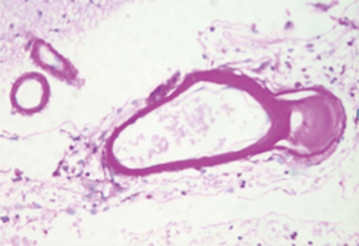 Periodic acid Schiff (PAS) stain showing bright pink staining material within small cerebral arteries in a patient with CADASIL.