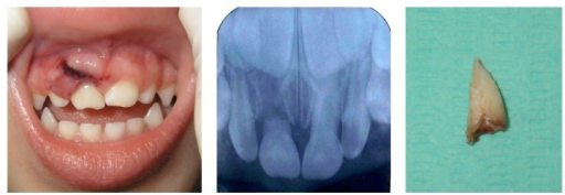 Intraoral view two hours after trauma. Periapical radiography. Root of the primary maxillary right central incisor root.