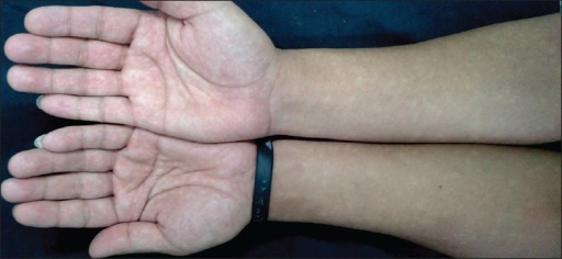 Innumerable hypopigmented macular lesions with faint, irregular borders against blanching erythema in a mottled pattern over forearms and palms. Mottling is more marked over the palms