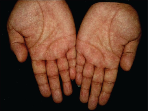 The lesions over palms became prominent after the limb was in a prolonged dependent position