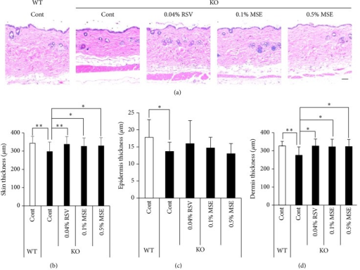 MSE and RSV attenuate skin atrophy in the Sod1−/− mice. (a) Hematoxylin and eosin staining of the back skin of Sod1−/− (KO) and Sod1+/+ (WT) mice treated with the MSE or RSV. MSE and RSV containing diets were administrated for 12 weeks. The thickness of (b) total, (c) epidermis, and (d) dermis of the back skin of the Sod1−/− and Sod1+/+ mice treated with MSE or RSV (n = 10–12). The statistical evaluations were performed using the Tukey's test. These data indicate the mean ± SD; ∗P < 0.05, ∗∗P < 0.01. The scale bar represents 100 μm.