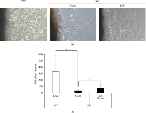 RSV promotes fibroblasts outgrowth from Sod1−/− skin. (a and b) Number of outgrowth fibroblasts of Sod1+/+ and Sod1−/− mice in the skin disc culture treated with 10 μM RSV for 72 h (n = 8). Fibroblast number was counted on day 3. The statistical evaluations were performed using the two-tailed Student's t-test for unpaired values. These data indicate the mean ± SD; ∗P < 0.05. The scale bar represents 100 μM.