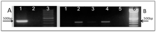 Molecular confirmation of plasmid constructions and yeast transformation by PCR: (A) Plasmid pLBF01 containing (1) MpSOD2; (2) pRS313; (3) molecular DNA marker (100 bp ladder); (B) Confirmation of yeast transformants containing either pRS313 or pLBF01 (PCR of DNA from each yeast clone): (1) SM01 (WT/pRS313); (2) SM02 (WT/pLBF01); (3) SM03 (Scsod2Δ/pRS313); (4) SM04 (Scsod2Δ/pLBF01); (5) no DNA added to reaction; (6) molecular DNA marker (100 bp ladder).