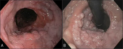 Initial endoscopy showing papillomatous nodularity at the esophagogastric anastomosis. (A) The papillomatous nodules are seen on the left posterolateral aspect of the esophagogastric anastomosis in antegrade views, with adjacent cobblestone appearance of the squamous mucosa of the distal remnant esophagus (acute and chronic reflux-type esophagitis). (B) The retroflexed view of the esophagogastric anastomosis from the gastric conduit revealed more significant extension of the papillomas.