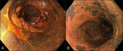 Staining of the remnant esophagus with Lugol's solution, which is absorbed by the glycogen-containing normal squamous epithelium, turning dark brown. Areas of dysplasia or cancer remain unstained allowing targeted therapeutic approach. (A) Focal non-staining areas are seen in the distal esophagus immediately proximal to the nodularity, and (B) more diffuse non-staining areas are seen in the middle of the remnant esophagus.