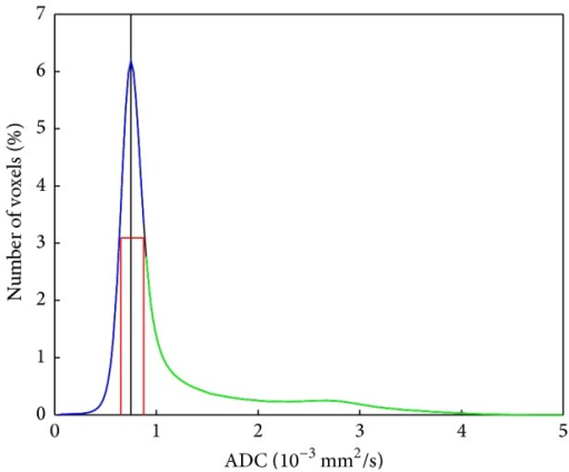 Histogram of ADC values from all patients. The position of the peak is marked by a black line; the position of the ADC values where the FWHM is reached is marked by red lines (ADC_50%_below and ADC_50%_above). The histogram was split into a first part (lower values than ADC_50%_above, blue) and a second part (larger values than ADC_50%_above, green). The value of ADC_50%_above lies between two data points; therefore the part of the histogram between the highest data point of the first point and the lowest part of the second point is shown in black.
