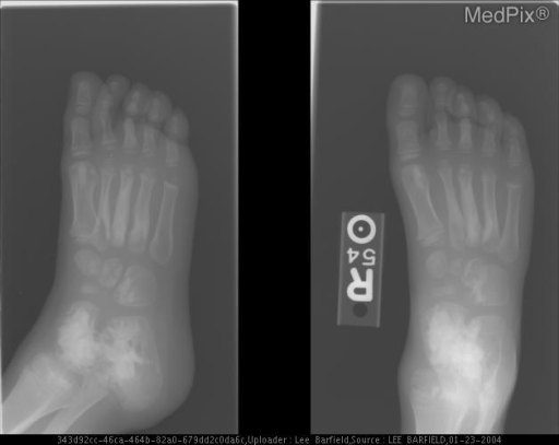 AP and oblique views of the right foot show multiple bones with hyperostotic regions. No soft tissue manifestations are present.